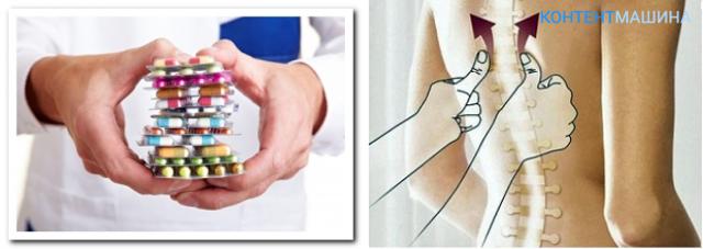 Обезболивающие при невралгии: таблетки, уколы, мази и свечи