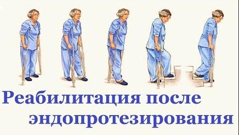 Санаторное восстановление после эндопротезирования тазобедренного сустава