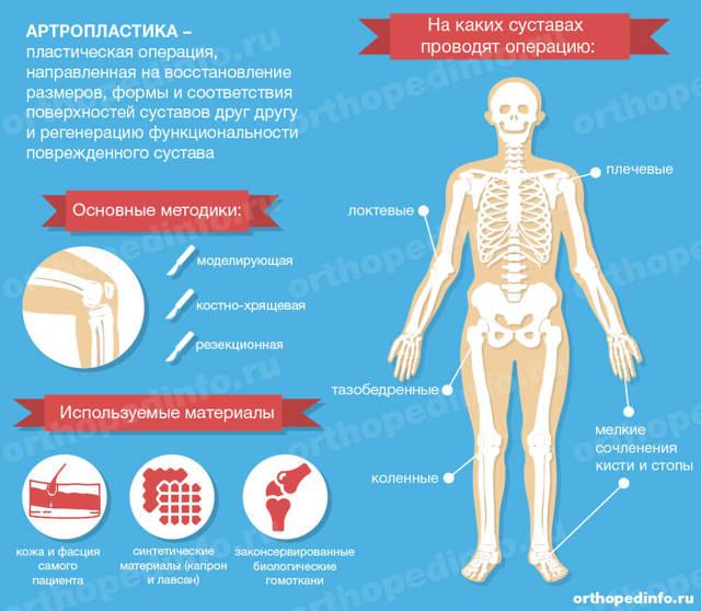Артропластика: суть метода и особенности проведения