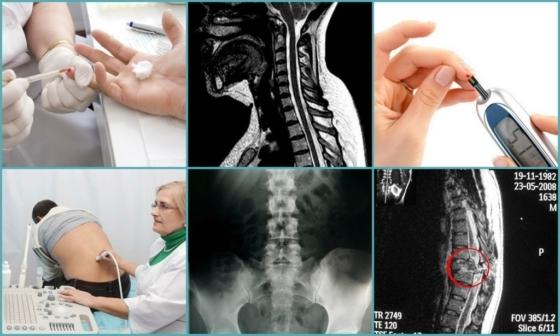 Немеет пятка: причины, диагностика и лечение