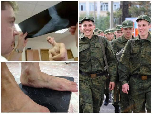 Берут ли в армию с плоскостопием 1,2,3 и 4 степени