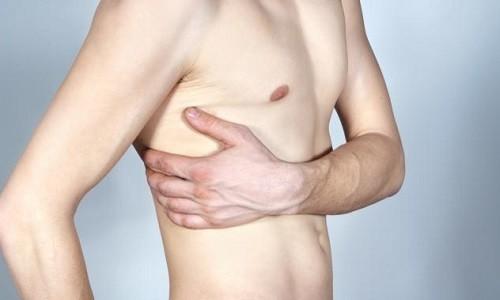 Перелом ребер: симптомы, первая помощь, лечение