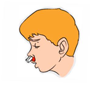 Перелом носа у ребенка: признаки, первая помощь и лечение