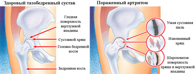 Боли в тазобедренном суставе при сидении: причины, лечение