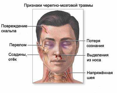 Перелом лобной кости: виды, первая помощь и лечение