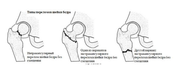 Перелом шейки бедра — причины, симптомы, лечение