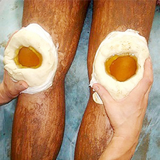 Боль в ноге от бедра до колена (в области сустава, мягких тканях): причины и лечение