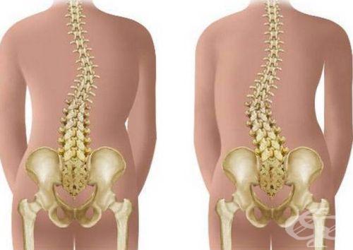 Кифоз грудного отдела позвоночника: симптомы, лечение