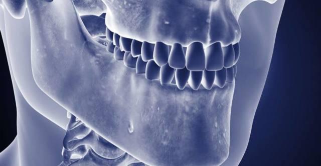 Остеомиелит челюсти — причины, симптомы и лечение