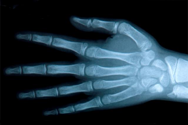 Ушиб пальца на руке: причины, симптомы, лечение