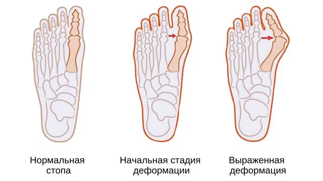 Фиксатор для косточки на ноге: обзор видов и способов применения