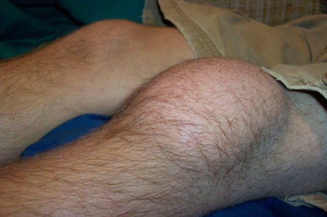 Как лечить мениск колена в домашних условиях
