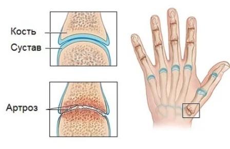 Симптомы артроза пальцев рук и способы его лечения