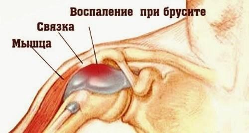Бурсит плечевого сустава: признаки, лечение и фото