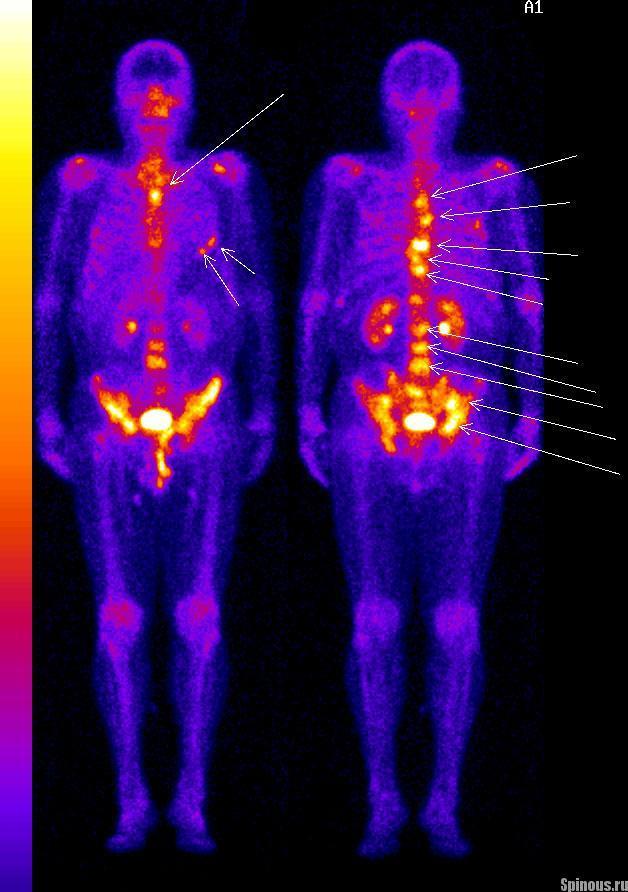 Остеосцинтиграфия - что это такое и как ее проводят