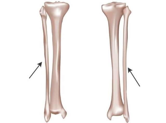 Перелом берцовой кости без смещения
