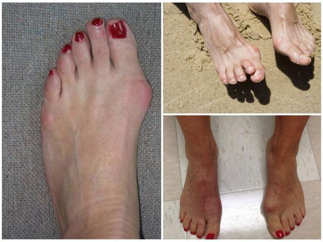Косточка на ноге у большого пальца: лечение народными средствами