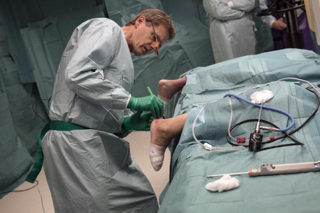 Перелом пяточной кости — симптомы, первая помощь и лечение