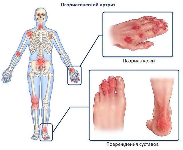 Диета при псориатическом артрите суставов