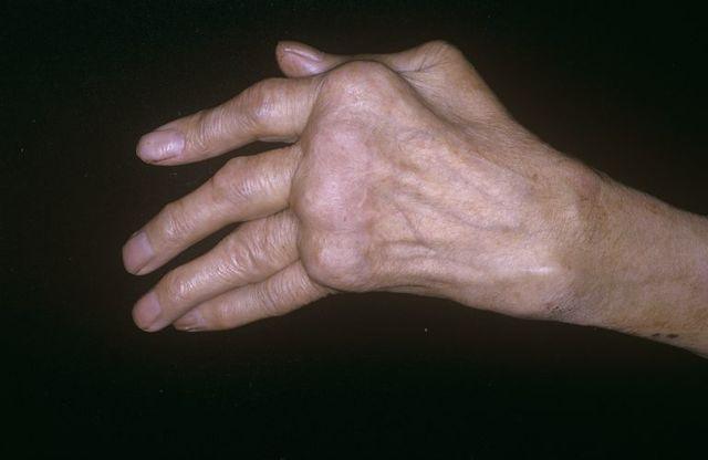 Полиостеоартроз. Лечение полиостеоартроза