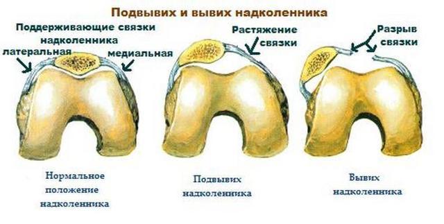 Растяжение связок коленного сустава: симптомы, лечение, диагностика