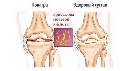 Болит коленная чашечка: причины и лечебные меры