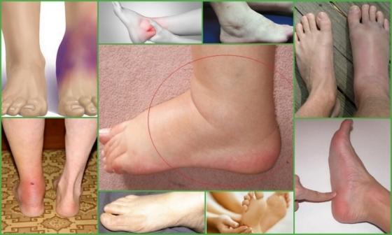 Тендовагинит голеностопного сустава: фото, симптомы и лечение