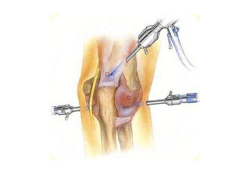 Шпора на локтевом суставе лечение
