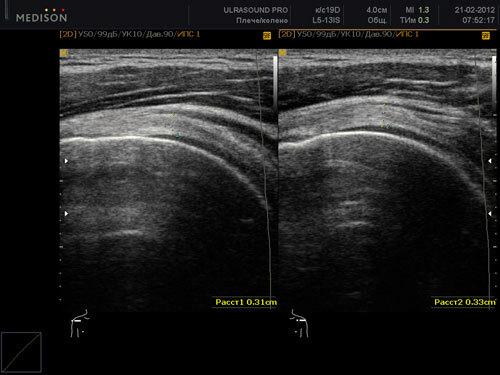 Какие болезни можно обнаружить при УЗИ плечевого сустава