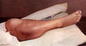 Саркома плечевой кости: симптоматика и методы лечения
