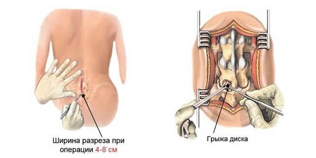 Операция по удалению грыжи поясничного отдела позвоночника