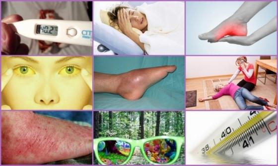 Гематогенный остеомиелит — симптомы, лечение, диагностика