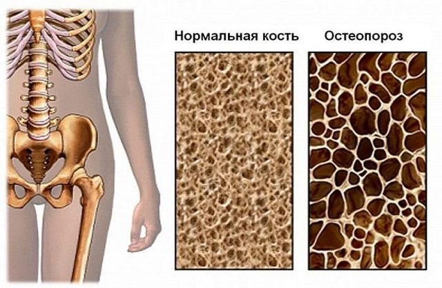Мумие при остеопорозе