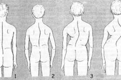 Врожденный сколиоз: причины и способы лечения