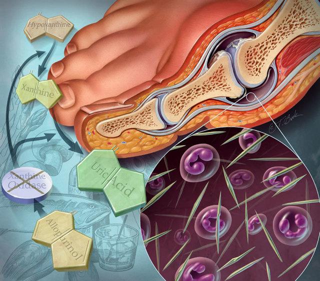 Употребление черешни при подагре: польза или вред