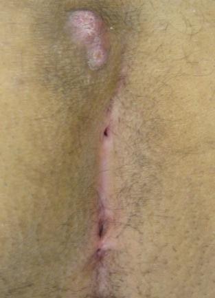 Эпителиальная копчиковая киста лечение