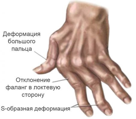 Артрит пальцев и кистей рук: симптомы, лечение, фото