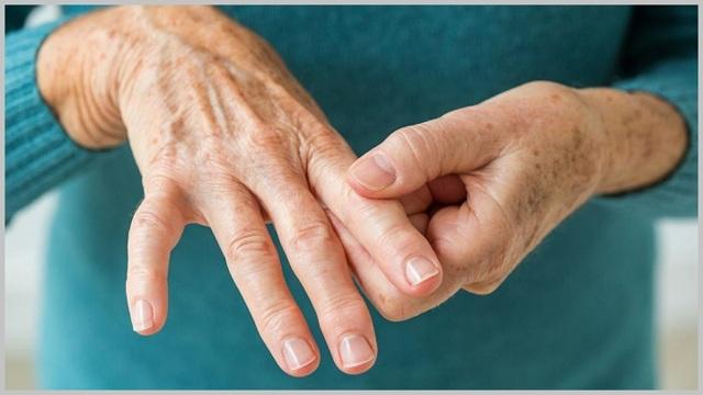 27cdaeca0b098b157c129534836ac36a - Bloedonderzoek voor artritis indicaties norm en behandeling van ADC