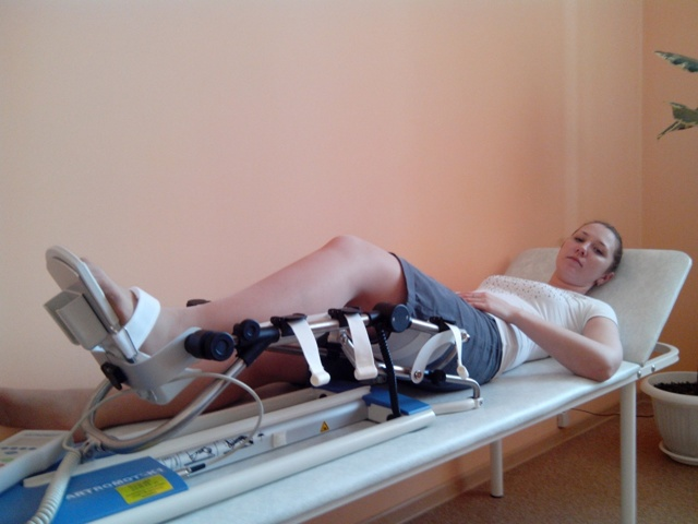 Аппарат Артромот для разработки сустава: виды, применение