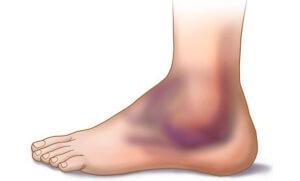 Ушиб голеностопного сустава: симптомы, лечение