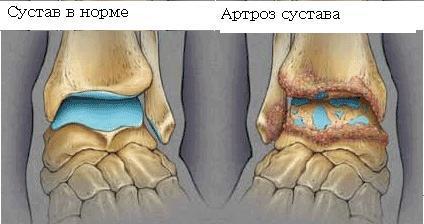 Симптомы артроза голеностопного сустава и его лечение