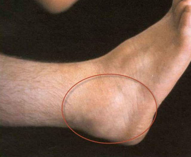 Синовит голеностопного сустава: причины и способы лечения