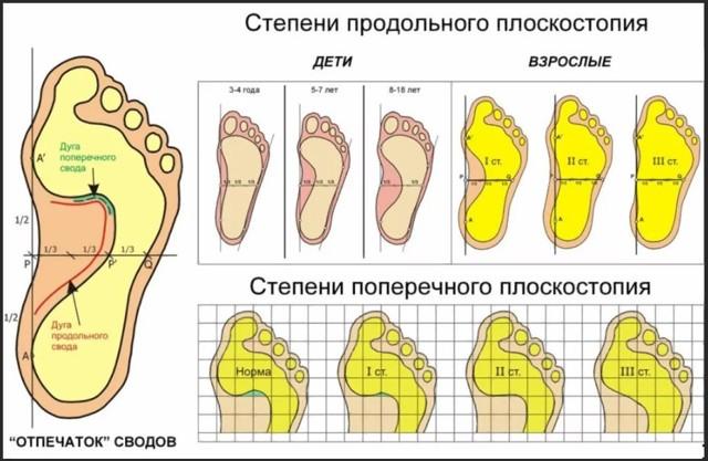 Ортопедическая обувь при плоскостопии: как выбрать