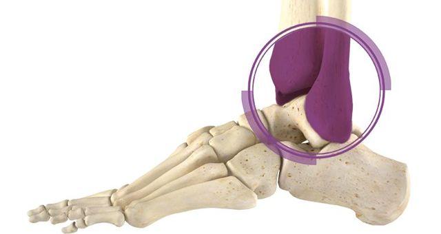 Перелом лодыжки: симптомы, первая помощь и лечение
