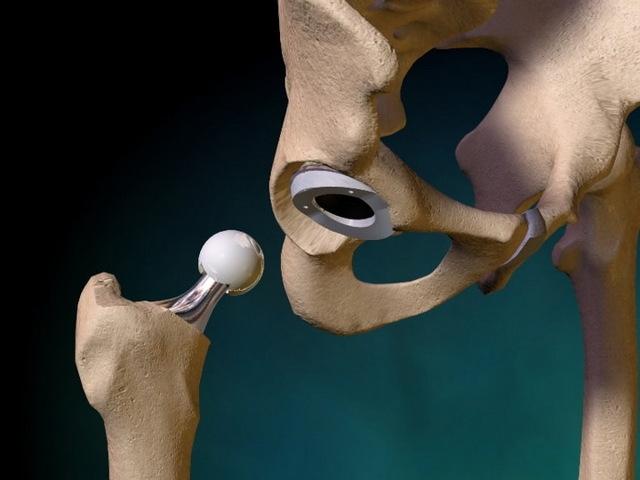Осложнения после эндопротезирования тазобедренного сустава