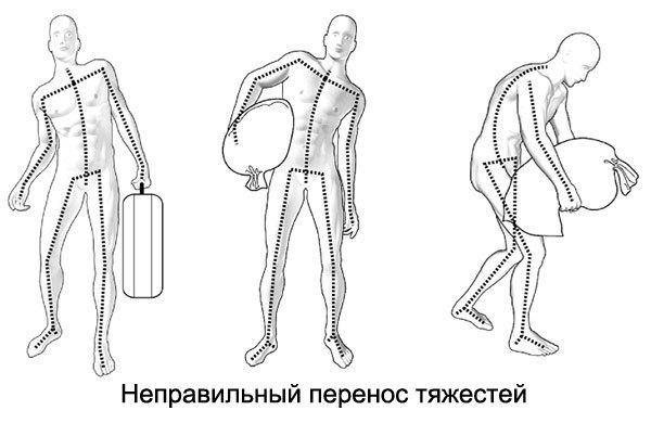 Упражнения при грыже поясничного отдела для укрепления позвоночника