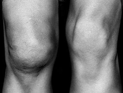 Разрыв медиального мениска коленного сустава: лечение и симптомы