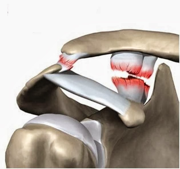 Разрыв связок плечевого сустава: признаки и лечение
