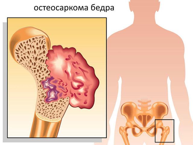 Саркома ноги: причины, симптомы и способы лечения