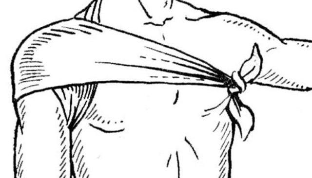 Косыночная повязка при переломе руки: способ наложения